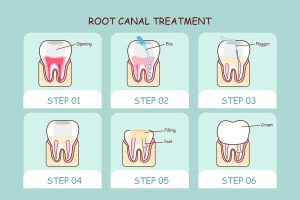 cartoon tooth root canal treatment great for dental care concept