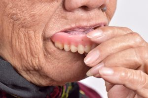senior woman putting false tooth into her mouth