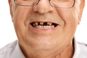 Affordable Dentures & Partial Dentures in Mexico