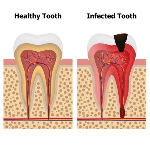 Root Canal Abscessed Tooth