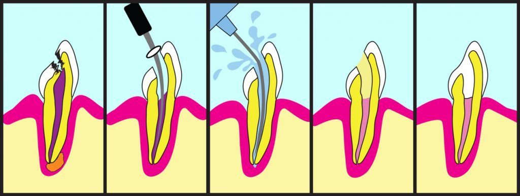 Root Canal Treatment Procedures