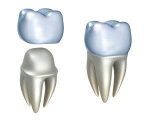 Zirconia Dental Crowns in Mexico