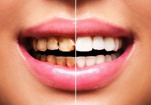 Mexico Dental Tourism
