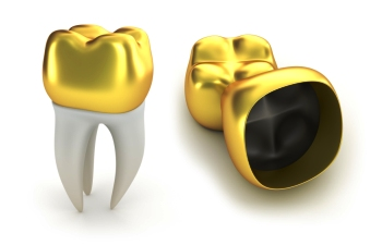 Porcelain Gold Dental Crowns in Mexico