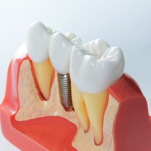 Dental Implants Albuquerque