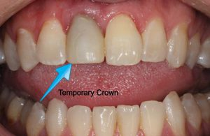 Discount Prices on Dental Crowns in Mexico