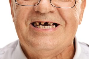 Affordable Dental Crowns in Las Cruces