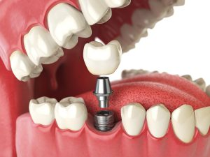 Affordable High-quality Dental Implant