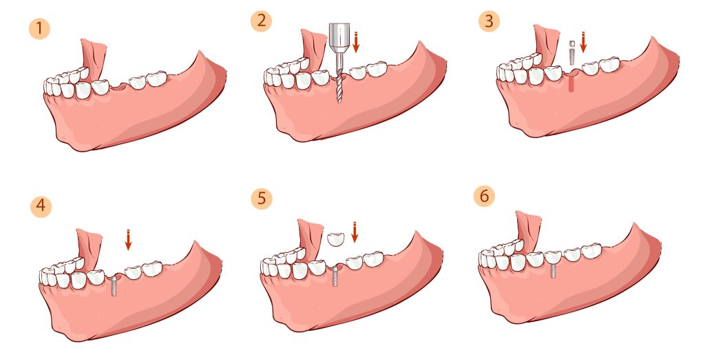 Placement of Dental Implants and Crowns