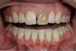 Dental Crowns in Las Cruces