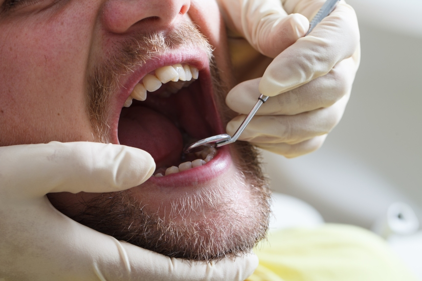 low-cost dental care in mexico