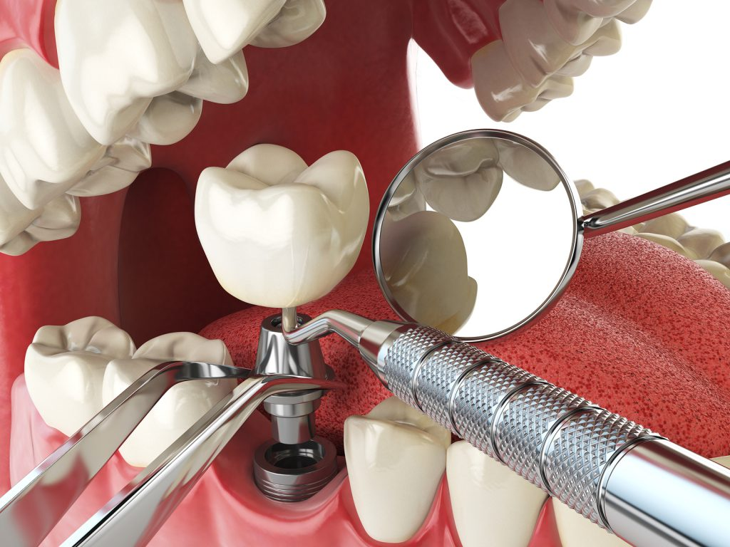 Dental Work in Mexico implants All-on-4s Non-Removeable Permanent Dentures