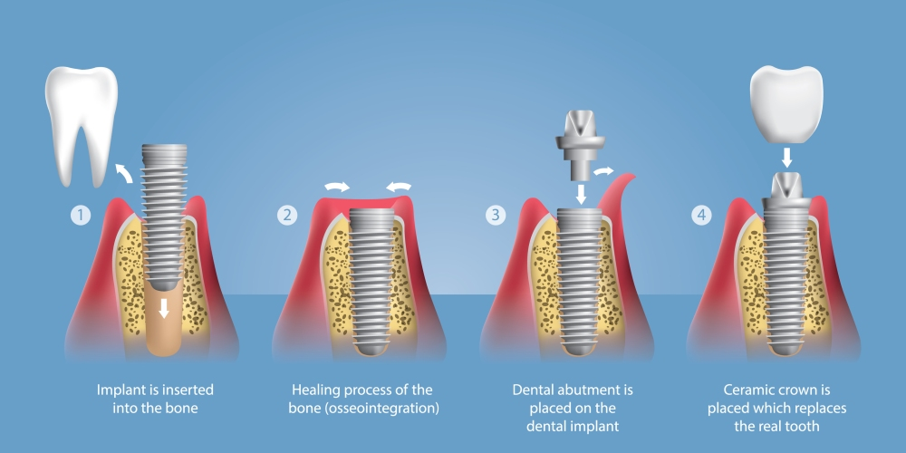 More on Dental Implants and All-on-4's