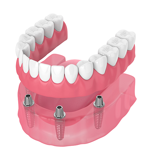Snap-on Overdenture Removeable Dentures