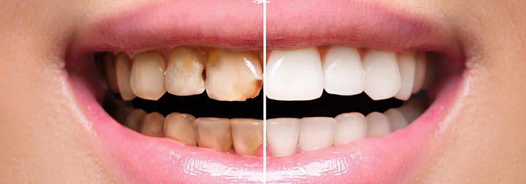 A Closer Look at Dental Crowns