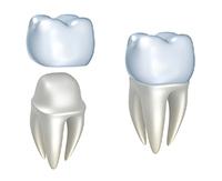 Porcelain, Zirconia dental crowns & bridges in Mexico