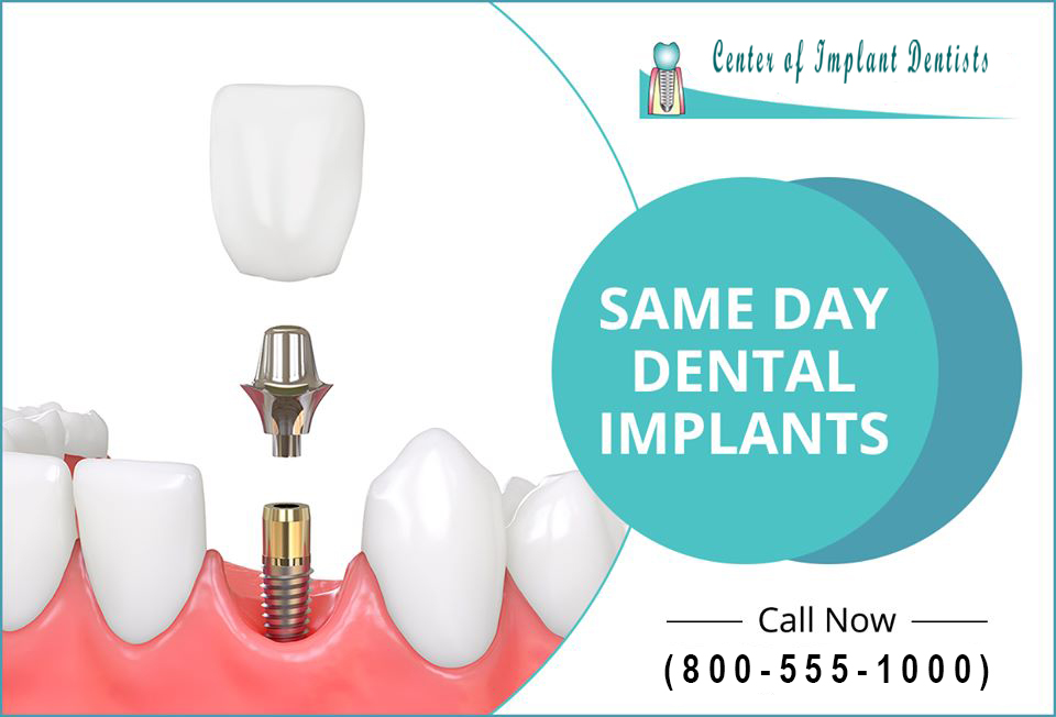 Same Day Dental Implants Dental Work in Mexico